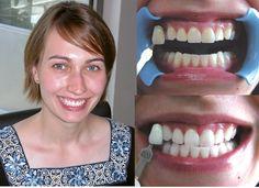 Oto jakie efekty można osiągnąć dzięki zabiegowi #wybielania #zębów metodą #Beyond!  Skorzystaj z naszej #promocji - teraz zapłacisz aż o 30 proc. mniej! Aktualna cena #wybielania #zębów metodą #Beyond wynosi 700 zł!