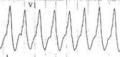 Monophasic R wave in VT Ekg Interpretation, Emergency Medicine, Critical Care, Wave, Medical, Waves, Golf, Active Ingredient, Weighing Scale