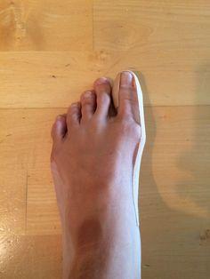 Domácí recepty na haluxy neboli vybočené palce bez operace. Mějte zase krásné nohy! - Blogy - ŽENY S.R.O. Healthy Nails, Physical Therapy, Detox, Health Fitness, Exercises, Foot Care, Garten, Health And Wellness, Exercise Routines