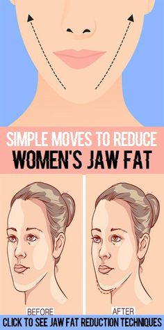Knee Fat: 8 Simple Facial Exercises To Reduce Jaw Fat at Hom. Causes Of Cellulite, Cellulite Exercises, Face Exercises, Cellulite Cream, Cellulite Remedies, Reduce Cellulite, Anti Cellulite, Cellulite Workout, Yoga Exercises