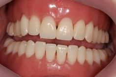 If, for any reason, you have to wear dentures, you should know you have to grant yourself a period of adjustment. Trauma, Medical Information, Teeth, Period, Blog, How To Wear, Tooth, Blogging
