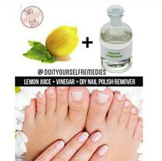 DIY Nail Polish Remover: All those times you needed that nail polish remover you know you put somewhere but you just cant find when you need it most! From now on make your own with ingredients straight from your pantry. Lemon Juice and Vinegar. Who knew!
