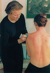 Gua Sha- An Eastern Healing techniue that removes toxins and helps blood stagnation.