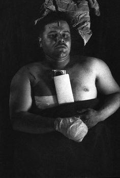 Wounded GI on stretcher, South Korea, Korean War 1952
