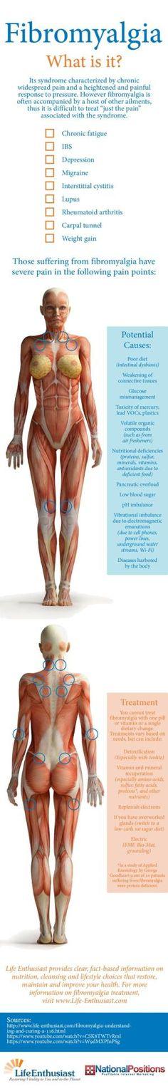 Fibromyalgia: What is it? by beatriz