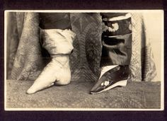 Bound feet of a Chinese woman. To enable the size of the feet to be reduced, the toes on each foot were curled under, then pressed with great force downwards and squeezed into the sole of the foot until the toes broke. The broken toes were held tightly against the sole of the foot while the foot was then drawn down straight with the leg and the arch forcibly broken.