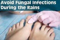 What Is A Fungal Infection Check more at http://www.healthyandsmooth.com/nail-fungus/what-is-a-fungal-infection/