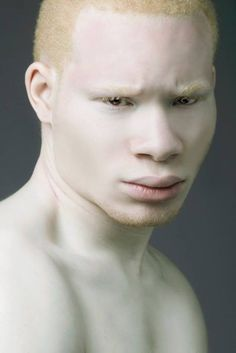 African Albino portrait - Meet The World's Sexiest Albino Model and Actor Modelo Albino, Foto Portrait, Portrait Photography, Beauty Photography, Pretty People, Beautiful People, Albino Model, Melanism, Unique Faces