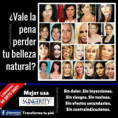 ¿Vale la pena perder tus rasgos faciales naturales a consecuencia del botox, rellenos, cirugías plásticas, etc? MEJOR REJUVENECE TU PIEL SIN PERDER TU BELLEZA ORIGINAL. Resultados garantizados. Tu piel se va transformando con el uso de Skincerity, a diferencia de otros productos, cuyo efecto tensor únicamente dura pocas horas. +Info. Cel.+WhatsApp: 55 2970 2601 #SkincerityMexico #NucerityMexico #TransformaTuPiel #arrugas #botox #lineasdeexpresión  #rejuvenece #antienvejecimiento #belleza
