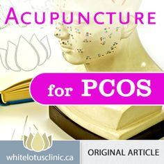 Acupuncture for PCOS –  Is It a viable alternative to Metformin?
