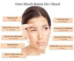 injection site for botox for migraines - Google Search