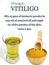 VITILIGO: HOW TO REMOVE THE WHITE SPOTS FROM YOUR SKIN
