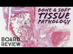 Bone & Soft Tissue Pathology Board Review: 20 Classic Cases - YouTube