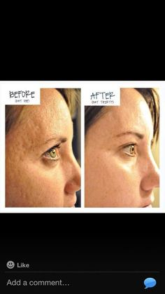 Now this is an amazing Before After! With results this proven who can deny the science of Nerium? www.rstibbens.nerium.com