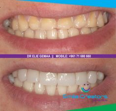 HOLLYWOOD SMILE in 2 sessions at SMILE CREATORS DENTAL CLINIC ! 71 - 680660 http://www.smilecreators-lb.com/HollywoodSmile — at Smile Creators Dental Clinic.