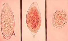 Schistosomes app. Also known as the blood flukes are detected by eggs in feces or urine. When cercaria penetrates the skin and leaves tails behind, it becomes a schistosomule. Either migrate to the blood vessels or veins depending on type. These three disease names consist of schistosomiasis, bilharziasis, and swamp fever. People may even develop collateral circulation. Be aware of these in Africa and Far East.