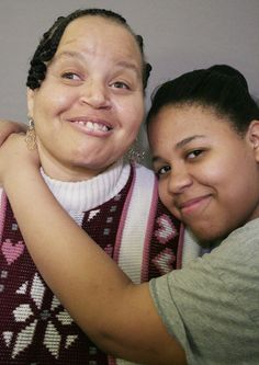 "A Life Defined Not By Disability, But Love by NPR: Bonnie Brown who is intellectually disabled raised her daughter Myra as a single parent. Brown tells her daughter,""I am really thankful because you understand me, and you love me, and you accept me. And ... thank you for that.  Myra says  ""I don't know, you kind of make it seem like I tolerate you — I love you. You're a good parent, and just because you're disabled doesn't mean that you do anything less for me."" Listen to the story. #Love"