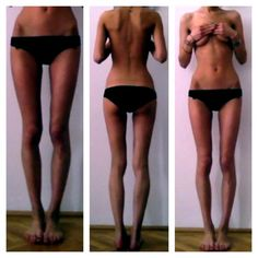 milk-and-ice:    stone-cold-memories:    surficise:    mediaa-ruined-beauty:    Thigh gap.    ugh can i have that body         10,000th person to reblog weeeeeeeeeeeee