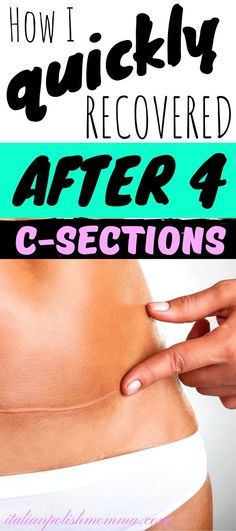 Did you just have a c-section and need some help? Here are some C-Section recovery tips from a mom who had 3 cesareans that every women should know! Postpartum Hair Loss, Postpartum Care, Postpartum Recovery, Post Pregnancy Workout, Pregnancy Tips, Healing From C Section, C Section Workout, Breastfeeding After C Section, C Section Recovery