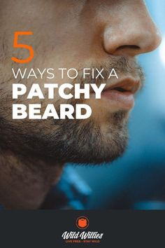 A patchy beard is the bane of every type of beard, but luckily it's something you can fix. Patchy Beard Tips Thin Beard, Bald With Beard, Short Beard, Beard Growth Tips, Beard Tips, Hair Growth, Natural Beard Growth, Beard Ideas, Beard Styles For Men