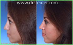 Rhinoplasty Before And After, Before After Photo, Women Life, Photo S, Surgery, Bridal, Female, Check, Nose Jobs