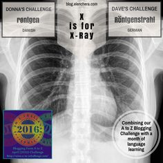 A to Z Blogging Challenge: X is for X-Ray #atozchallenge
