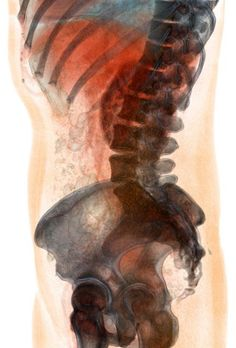 Transparent Abdomen Volume Rendering | contrast enhanced abdominal CT scan