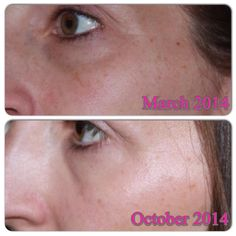 Anne Moreland Acute Care before and after