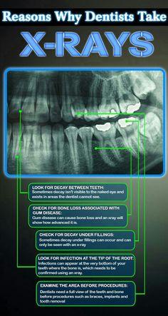 The reasons why we take x-rays Kidz Dental Works #KidzDentalWorks www.kidzdental.net