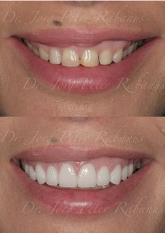 Bright and beautiful smile thanks porcelain veneers.
