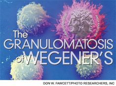 The Granulomatosis of Wegener's :: Article - The Rheumatologist