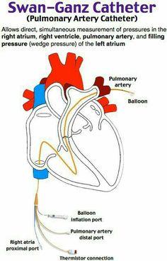 Nursing Assessment, Cardiac Nursing, Nursing Mnemonics, Heart Catheterization, Cardiac Catheterization, Nursing Tips, Nursing Notes, Cath Lab Nurse, Cardiac Sonography