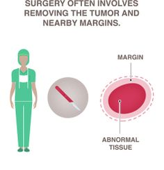 Surgery: #NBCF explains the different types of surgery options available to #breastcancer patients.