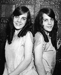 Daisy (R) and Violet (L) Hilton (1908 - 1969)