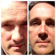 #Before and #After Amazing #Nerium #cream results! Join our team  www.youtube.nerium.com