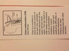 Chiari Malformation- the bookmark my neuro surgeon gave me before my brain surgery