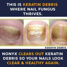 Ugly Toenails, Yellow Toe Nails, Nail Discoloration, Nail Ridges, Nail Treatment, Toenail Fungus Remedies, Nail Infection, Diets, Health