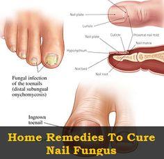 Health Clue: Home Remedies
