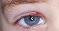 Dit kan erg vervelend en lastig zijn. Wakker worden met een strontje in je oog is niet fijn en kan aardig zeer doen.