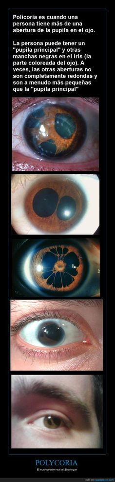 Polycoria is a pathological condition of the eye characterized by more than one pupillary opening in the iris. It may be congenital or result from a disease affecting the iris.