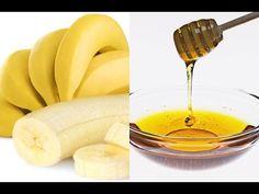 Om du lider av en ihållande hosta eller bronkit, kommer du att älska knepet vi ska presentera här idag. Den är gjord av honung och bananer som kommer att lugna din onda hals, lindra din hosta och kan även hjälpa dig mot magproblem. Här är hur man förbereder botemedlet: Ingredienser -2 Tsk honung -2 Medelstora …