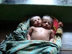 A baby boy born with two heads in southwestern Bangladesh died after his parents decided to take him home because they could not afford adequate medical care, a doctor said Thursday. The boy, named Kiron, was born Monday by Cesarean section and died at home late Wednesday after developing a fever and breathing difficulties, paediatrician KS Alam told AFP.