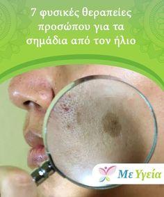 7 φυσικές θεραπείες προσώπου για τα σημάδια από τον ήλιο  Μην ξεχάσετε να εφαρμόσετε αυτές τις θεραπείες κατά τη διάρκεια της νύχτας, προκειμένου να αποφύγετε την επιδείνωση της εμφάνισης των πανάδων, καθώς οι θεραπείες που χρησιμοποιούν το λεμόνι μπορεί να αλληλεπιδράσουν αρνητικά με τον ήλιο.