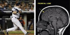 Baseball Injuries, Mlb, Friday, Baseball Cards, Signs, Check, Sports, Image, Hs Sports