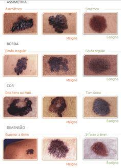 Você conhece a regra do ABCD?A metodologia é indicada pela SBD (Sociedade Brasileira de Dermatologia), com a finalidade de facilitar o reconhecimento das manifestações dos três tipos de câncer de pele: carcinoma basocelular, carcinoma espinocelular e melanoma. Asignifica assimetria B significa borda C significa Cor...