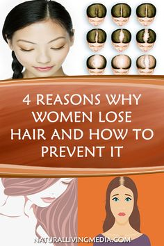 Bald Heads - Hairl Loss Tips Health Tips For Women, Health Advice, Health And Beauty, Health Care, Healthy Tips, How To Stay Healthy, Healthy Drinks, Healthy Recipes, Healthy Options