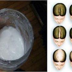 Voici comment utiliser le bicarbonate de soude pour faire pousser vos cheveux plus rapidement comme par magie!