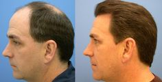 Before and After Hair transplant.