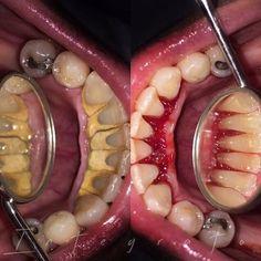 Dentaltown - I'm A Dental Hygienist. What's Your Superpower?