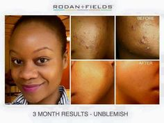 Check out Jazmine Reynolds' GORGEOUS results using Rodan + Fields Award Winning skincare!!    She had been seeing a dermatologist for years and had tried everything  and was always left disappointed. In fact, after hearing about Rodan +  Fields products she didn't think they would work, but after seeing so  many success stories she figured WHY NOT give UNBLEMISH a try!   FINALLY, after years of failed attempts, she found products that work!  It's no wonder UNBLEMISH is ranked the #1 Premium…
